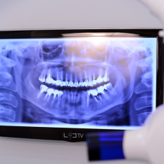 dental x-ray in Stomaservice